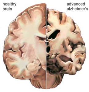 Feed Your Brain With Daily Mental Nutrition So You Don't Develope Rickets of The Brain